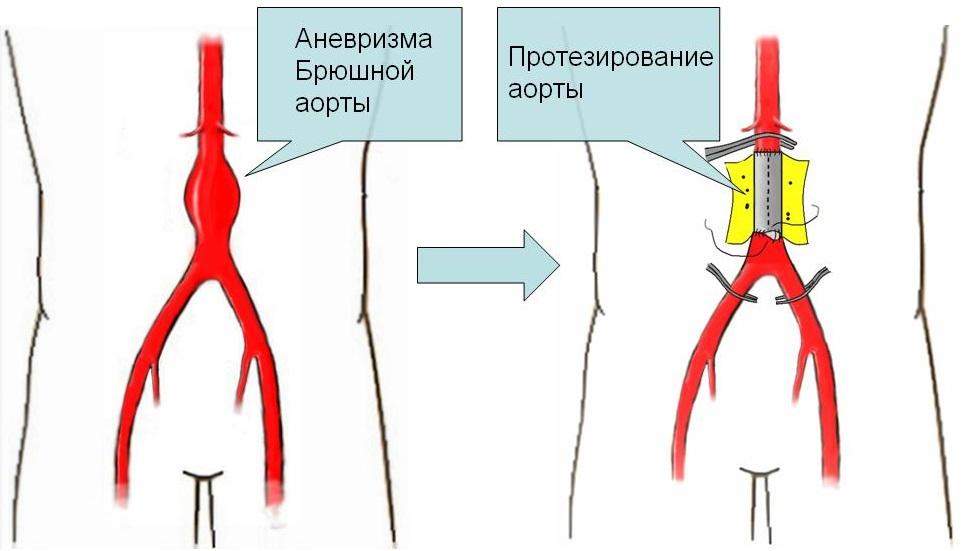протезирование аневризмы брюшной аорты