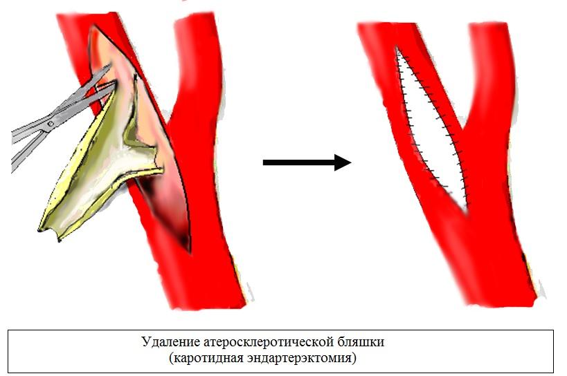 Хирургическая операция на сонной артерии при атеросклерозе